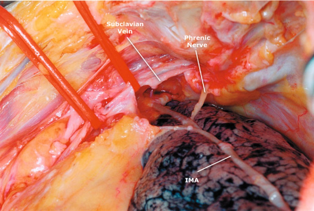 HARVESTING Internal Mammary Artery (LIMA) - CThSurgery.com